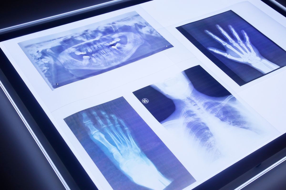 radiografías cuerpo humano en la mesa de luz