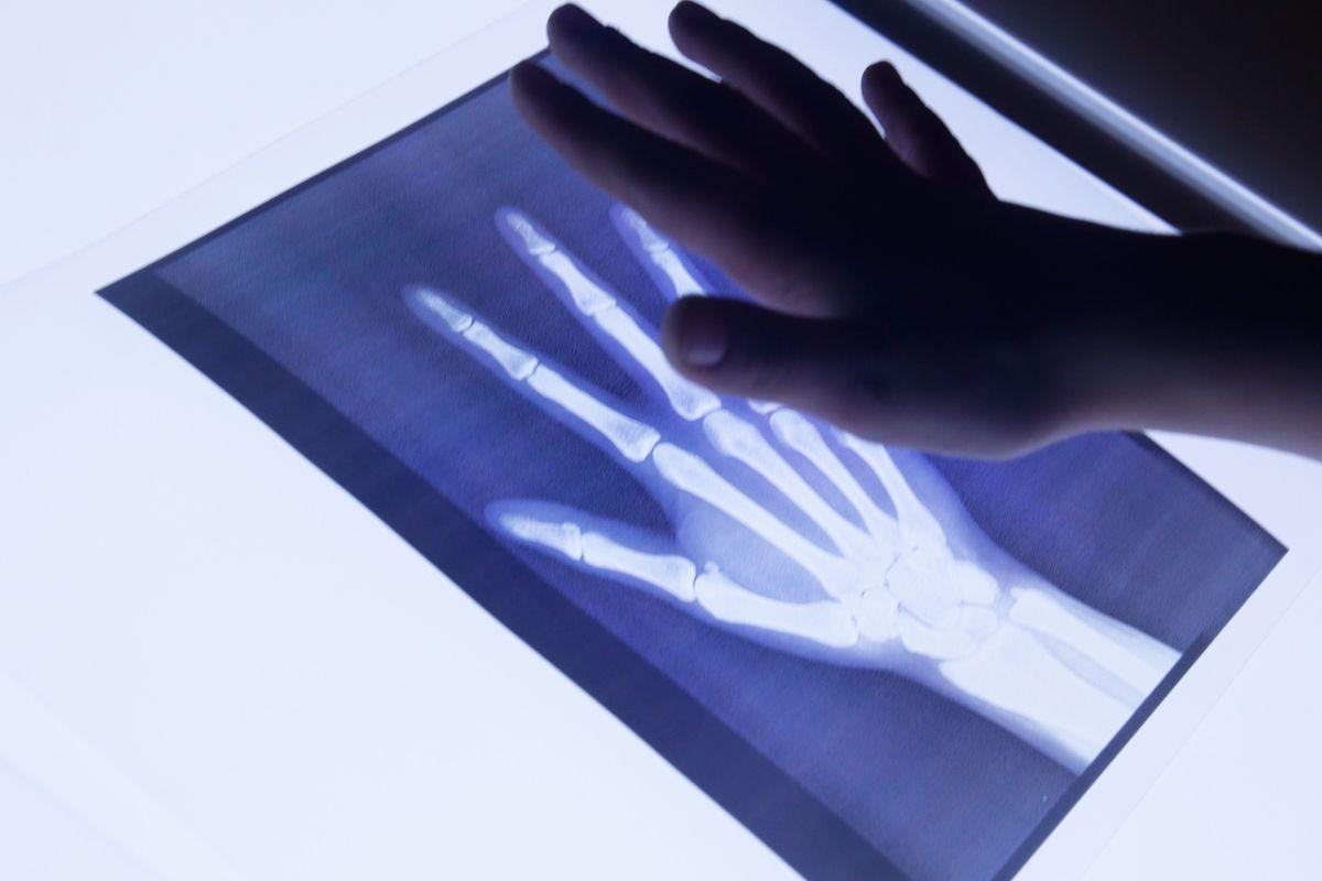 radiografias-en-la-mesa-de-luz-mano